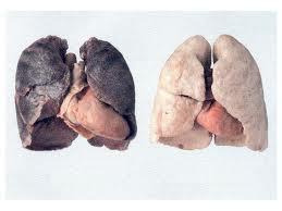 El Cáncer de pulmón causará más muertes que el cáncer de mama en las mujeres