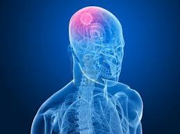 Identificado un mecanismo molecular esencial para el crecimiento del meduloblastoma, el tumor cerebral pediátrico más comun