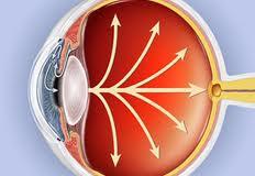 El día mundial del Glaucoma pretende llamar la atención sobre esta grave enfermedad