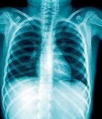 La Tuberculosis se hace más frecuente y más resistente a los fármacos