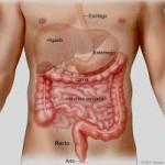 El Cáncer de Colon se cura en la mayoría de los casos si se diagnostica a tiempo