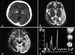 El Ictus cerebral mejora al tratar a los pacientes con células madre humanas