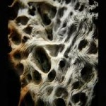 La osteoporosis provoca el triple de fracturas en las mujeres que en los hombres
