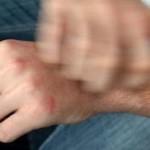 El mecanismo que activa la sensación de picor ha sido descubierto por científicos norteamericanos
