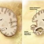 El Alzheimer puede ser diagnosticado precozmente con un sencillo análisis de sangre