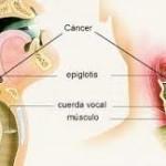 Los oncólogos confirman que el cáncer de garganta puede ser provocado por el sexo oral