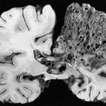 Descubren una proteína que frena el crecimiento de los tumores cerebrales malignos