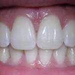 Científicos chinos crean tejido óseo para dientes a partir de células madre de orina humana