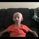 Los niños afectados de Progeria se hacen viejos desde muy jóvenes