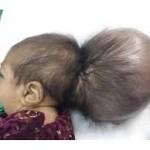 Un bebé con dos cráneos