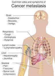 Metástasis cáncer de pulmón