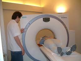 Tomografía cáncer de pulmón