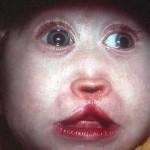 El síndrome de Patau, o la condena de morir cada día