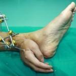 Injertar la mano en el tobillo: Método para salvarla